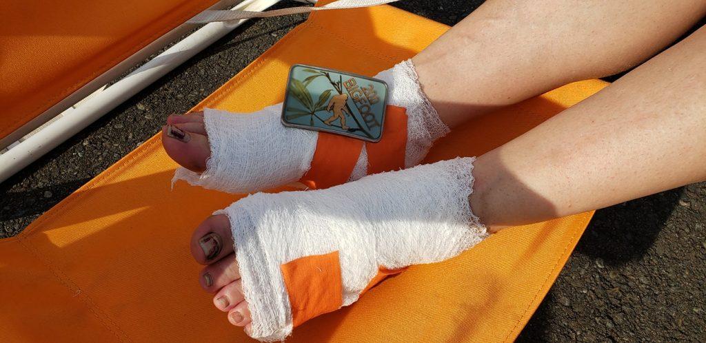 bandaged feet